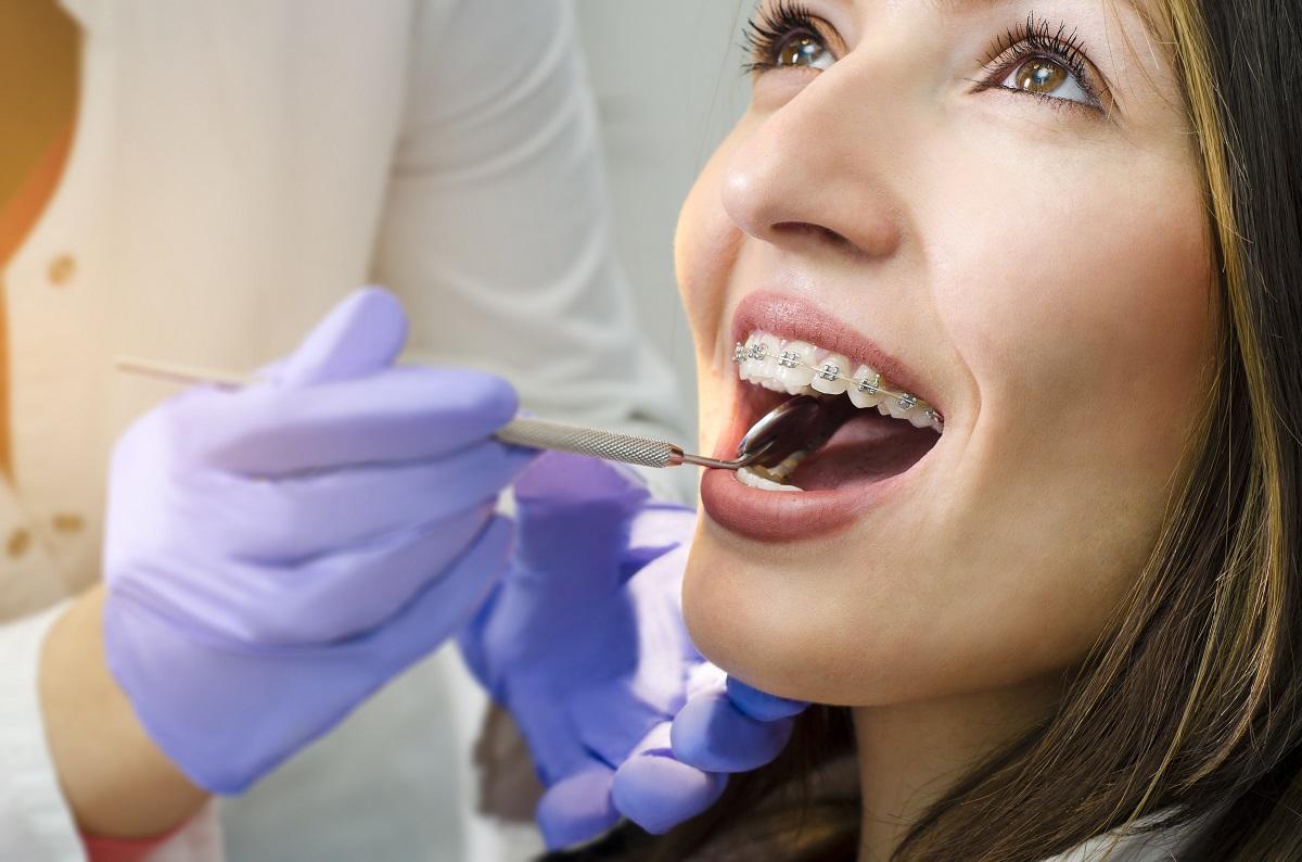 Aparat ortodontyczny – jak wygląda codzienna higiena?